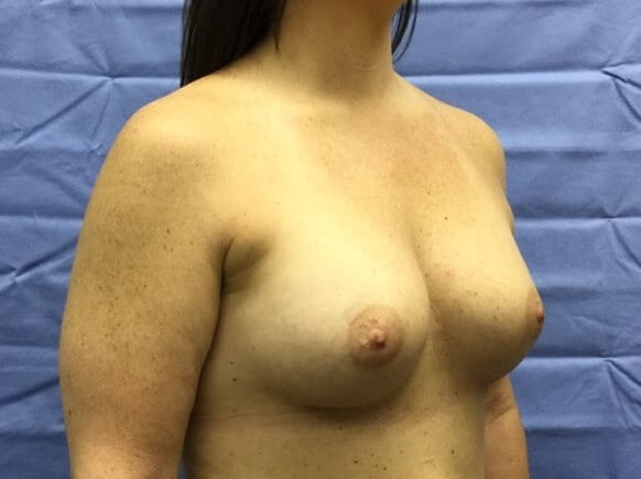 Oblique After