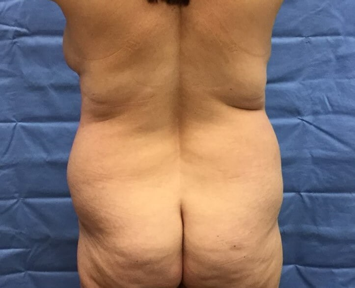 Posterior Before
