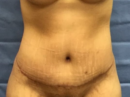 Anterior After